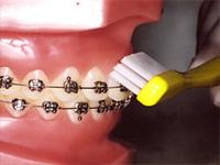 歯茎の境目