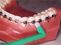 歯と歯茎の間