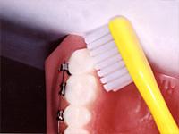 上の一番奥歯