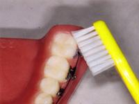 下の一番奥歯